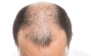 AGA,男性型脱毛症